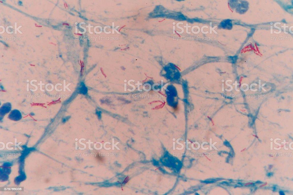 mycobacterium tuberculosis stock photo