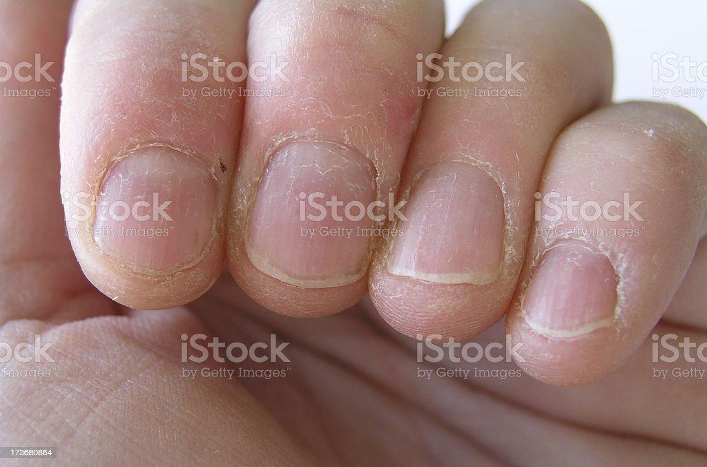 Nail biter royalty-free stock photo