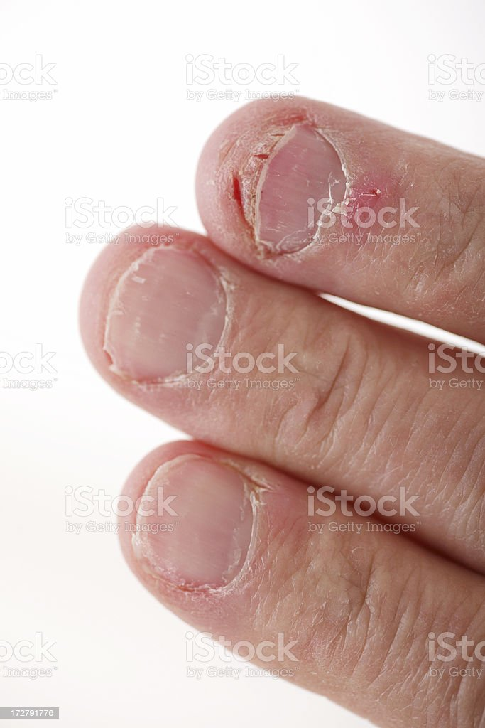 Nail Biting stock photo
