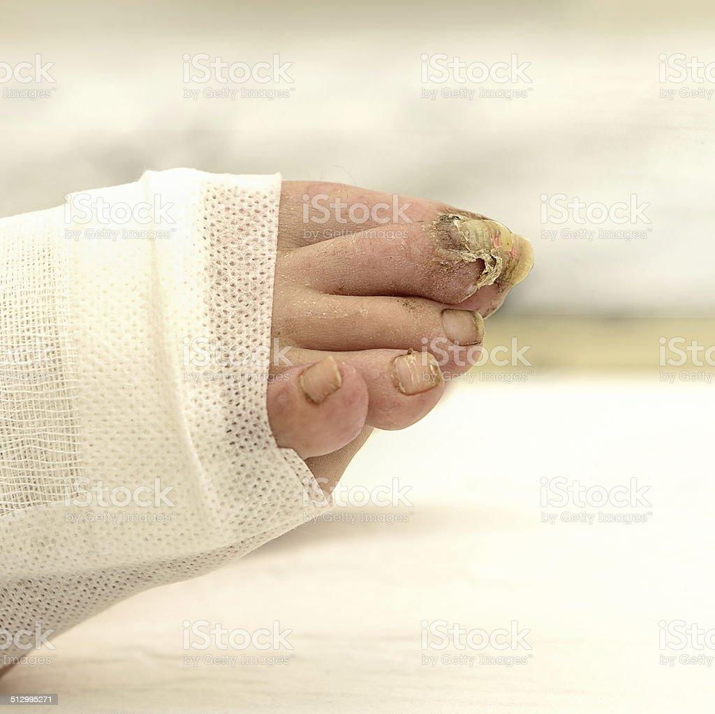 Nail disease, onychomycosis, nail fungus. stock photo