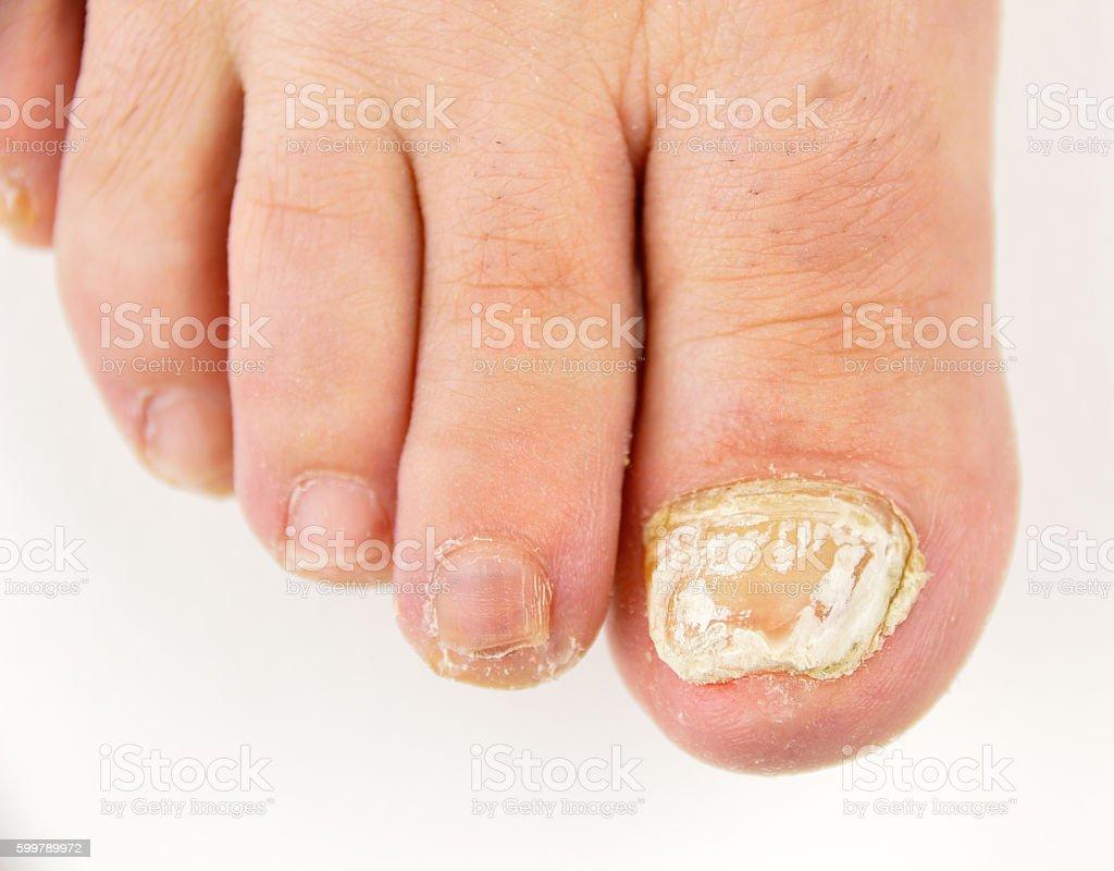 nail fungus stock photo