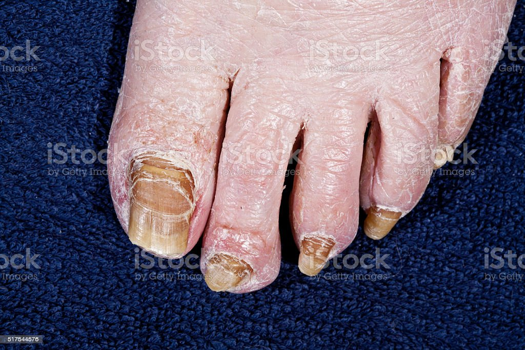 Nails feet person affected by fungus stock photo