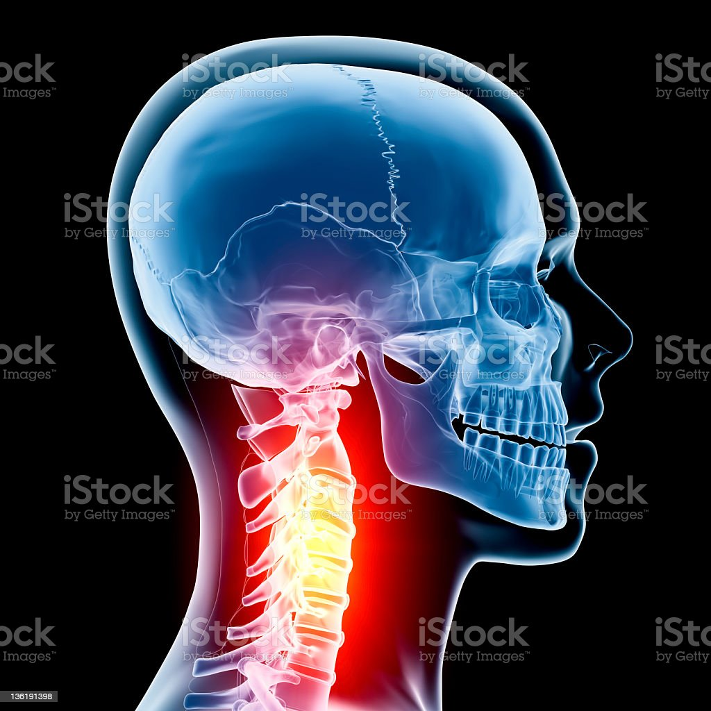 Neck in pain x-ray royalty-free stock photo