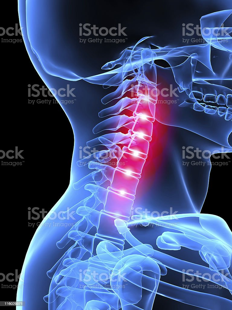 neck inflammation stock photo