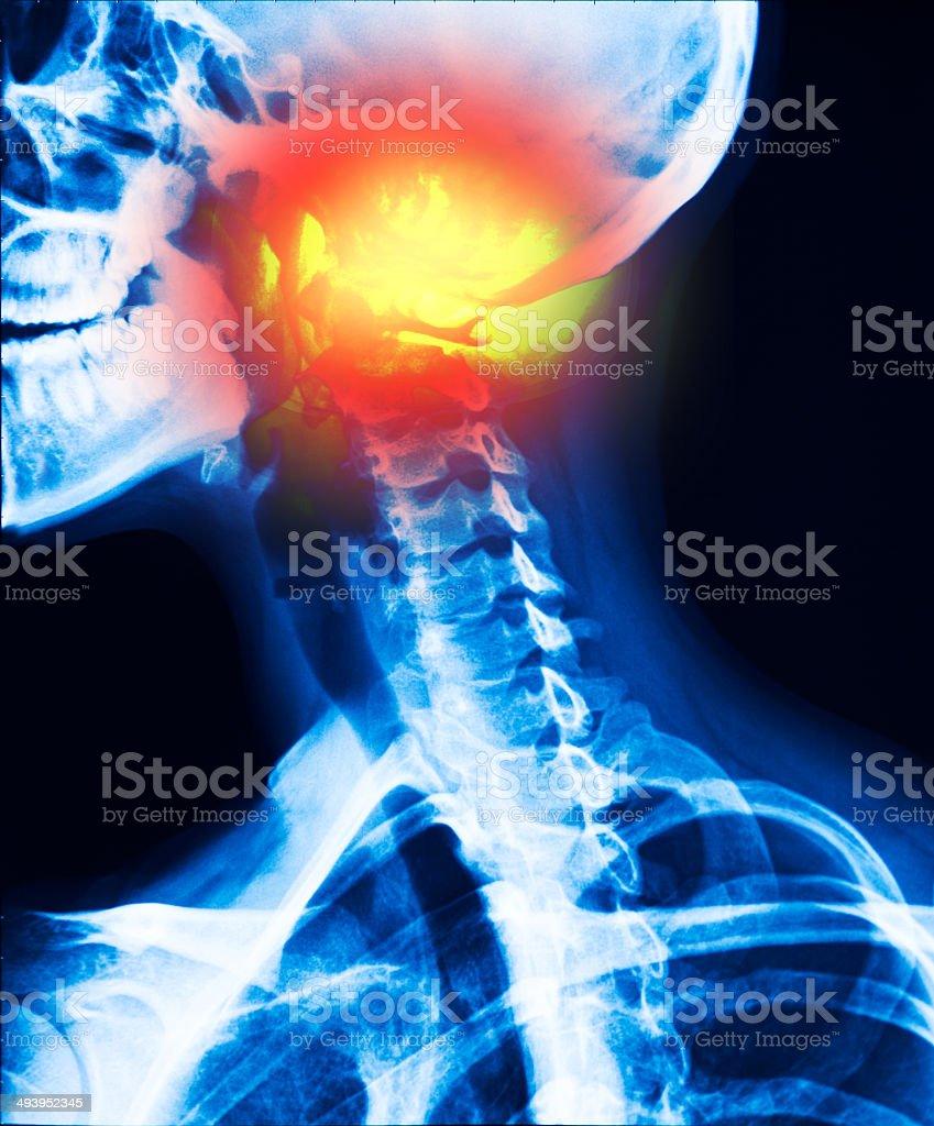 neck inflammation stock photo