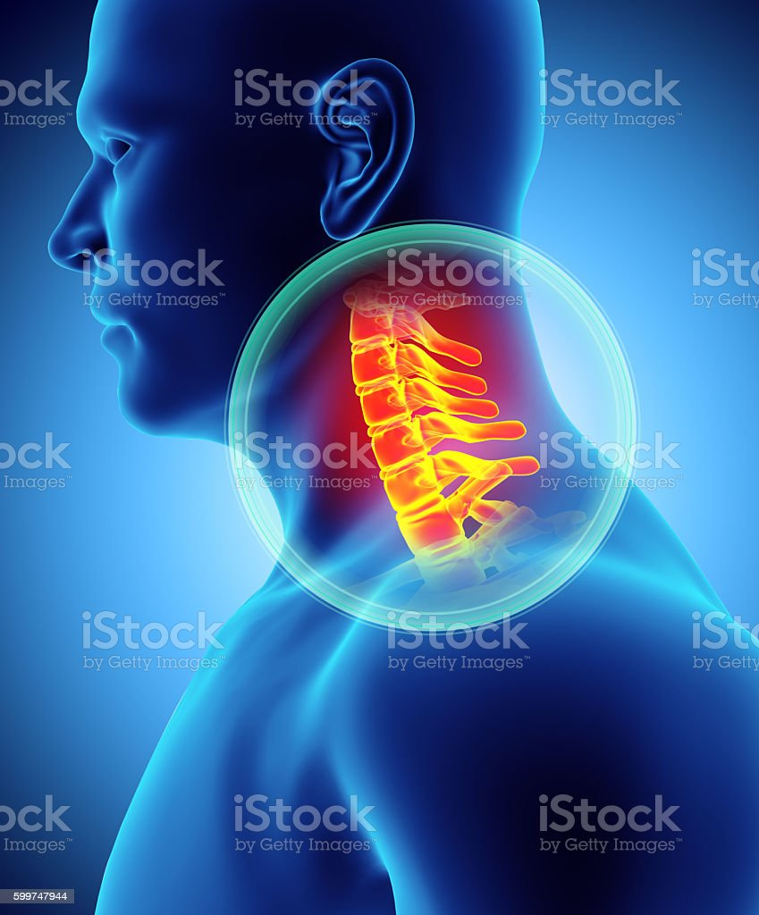 Neck painful - cervica spine skeleton x-ray, 3D illustration. stock photo