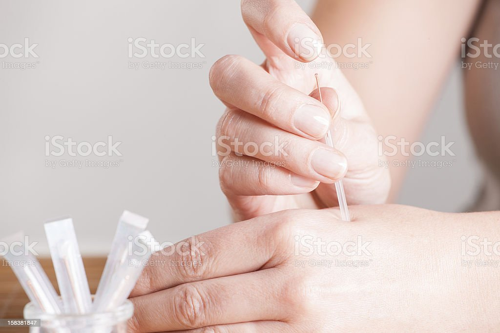 Needeling Acupuncture royalty-free stock photo