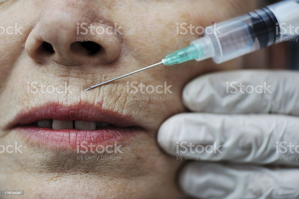Needle injection on mature woman face royalty-free stock photo