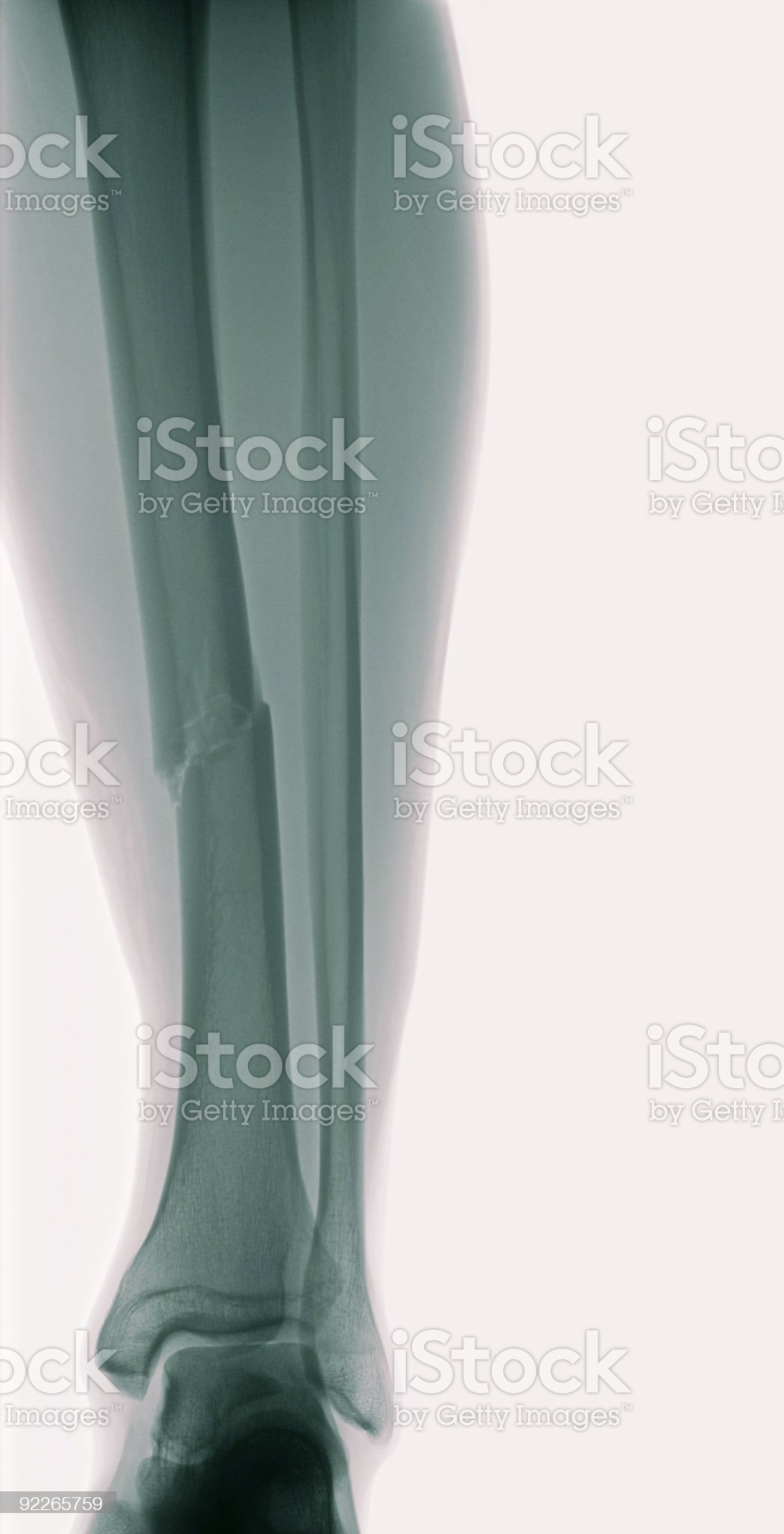 Negative x-ray image of human tibia with fracture royalty-free stock photo