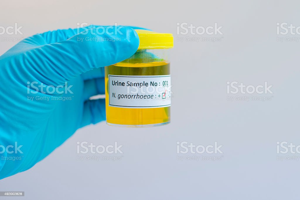Neisseria gonorrhoeae positive stock photo
