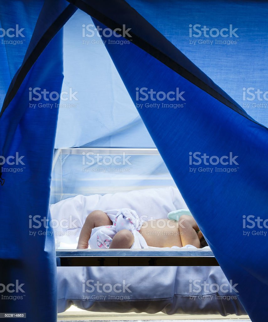 Neonatal Jaundice stock photo