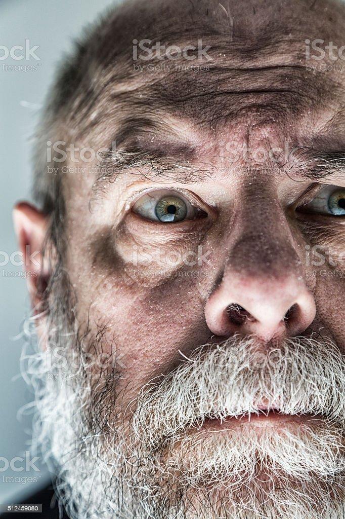 Nervous Raised Eyebrow Flaky Skin Senior Adult Man Looking Scared stock photo