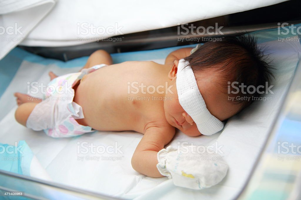 newborn baby under ultraviolet lamp stock photo