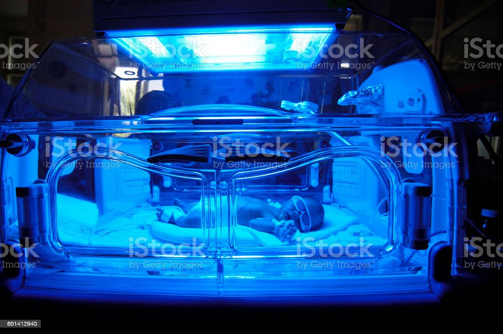 Newborn child baby having a treatment for jaundice under ultraviolet light in incubator. stock photo