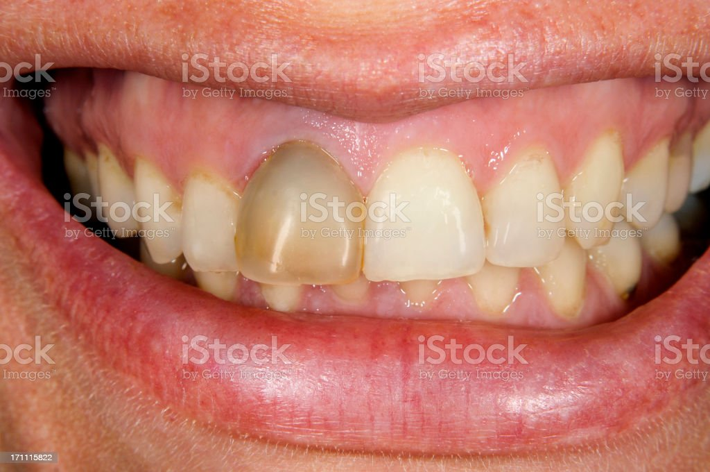Non-vital Tooth stock photo