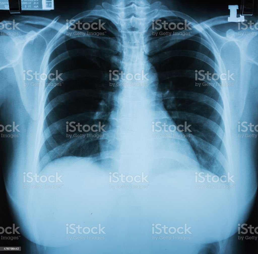 normal chest X-ray stock photo