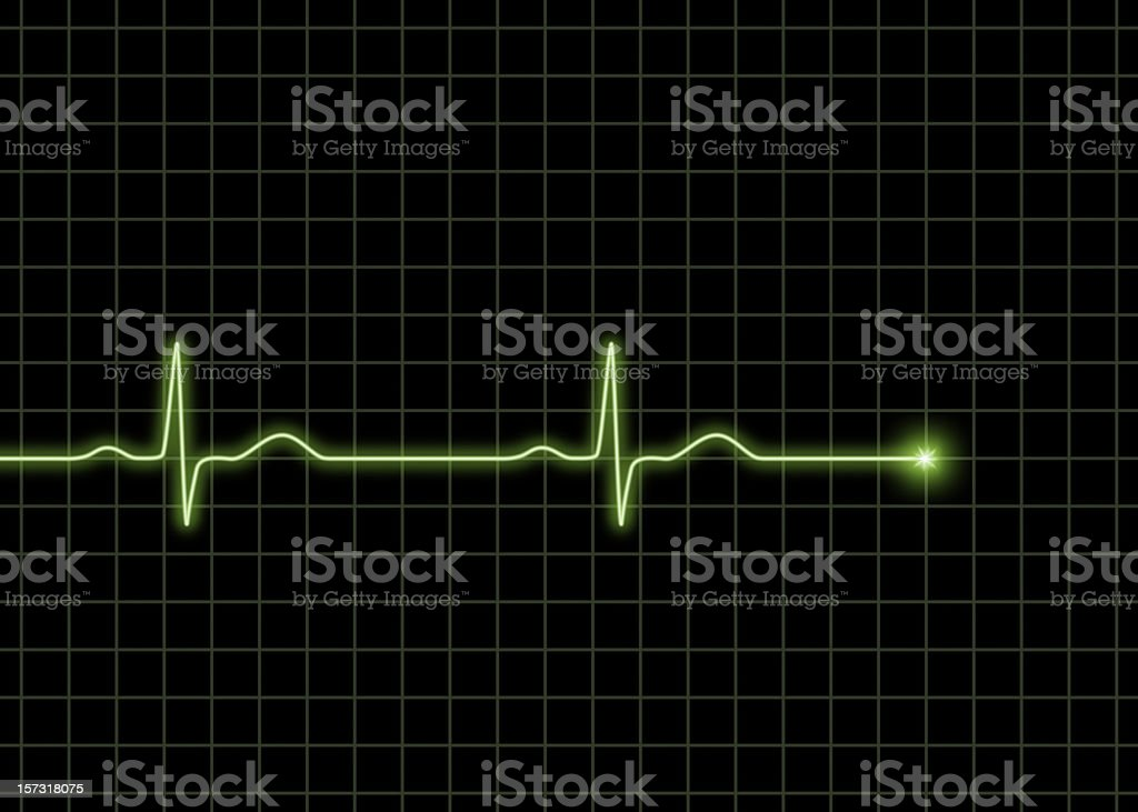 Normal ECG waves stock photo