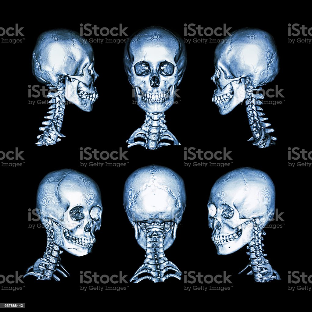 Normal human skull and cervical spine . all direction stock photo