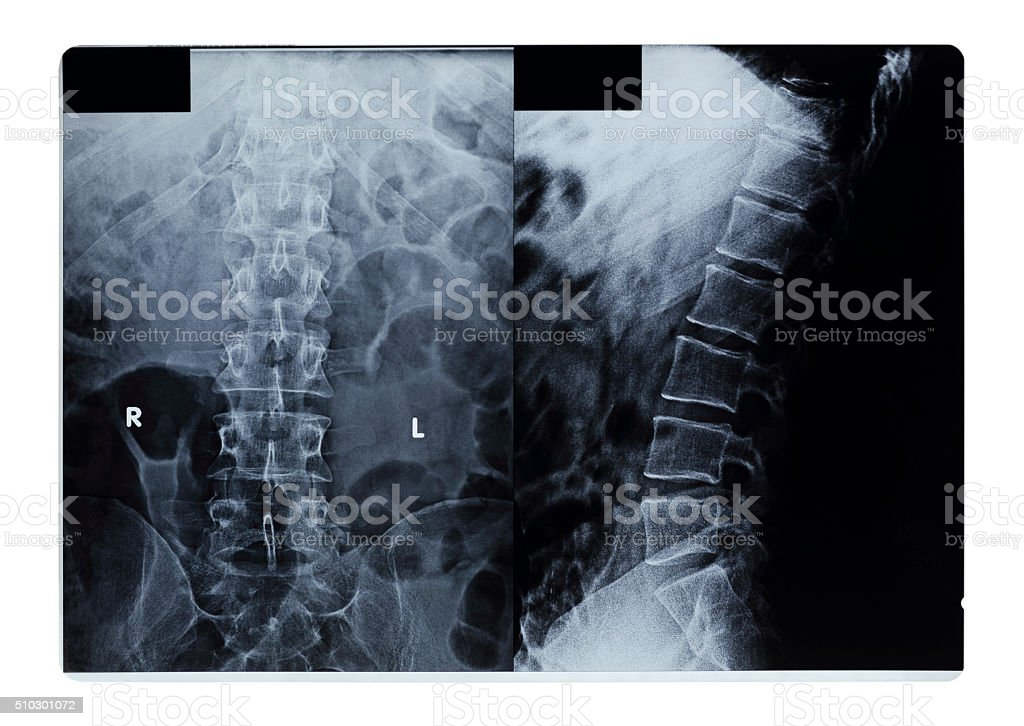 normal human's thoracic-lumbar spine stock photo