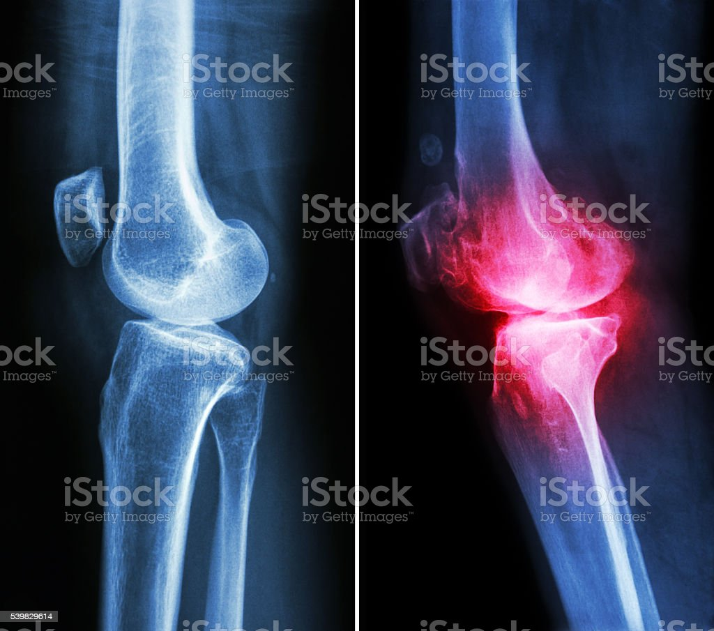 normal knee and osteoarthritis knee stock photo