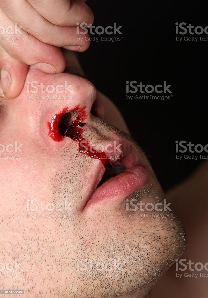 Nose Bleed royalty-free stock photo