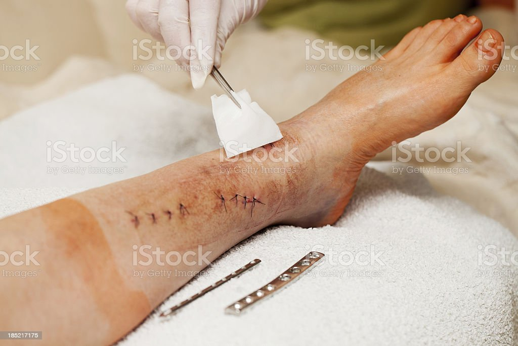 Nurse at work with patient after leg broken operation royalty-free stock photo