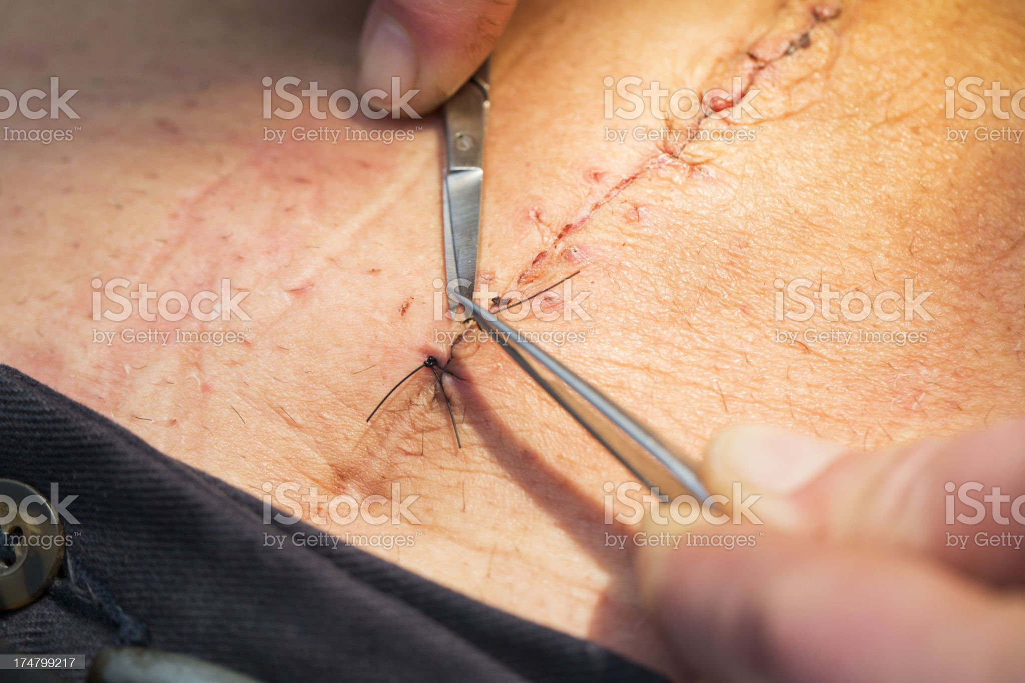Nurse at work...removing stitches from a wound royalty-free stock photo