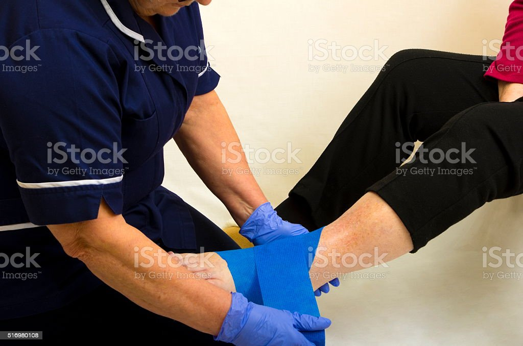 Nurse Fitting a Support Bandage stock photo