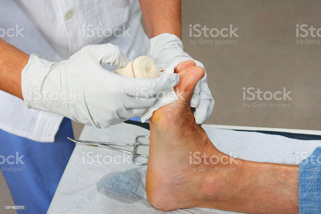 Nurse is changing bandage to a patient...wound on foot royalty-free stock photo
