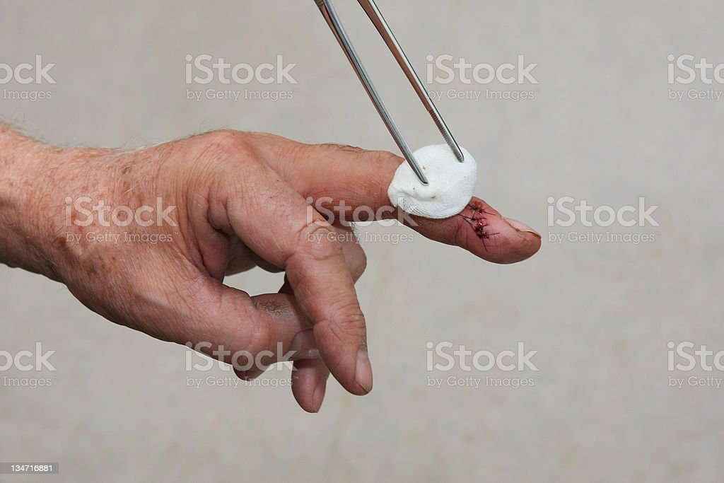 Nurse is changing bandage to a wounded patient's finger royalty-free stock photo