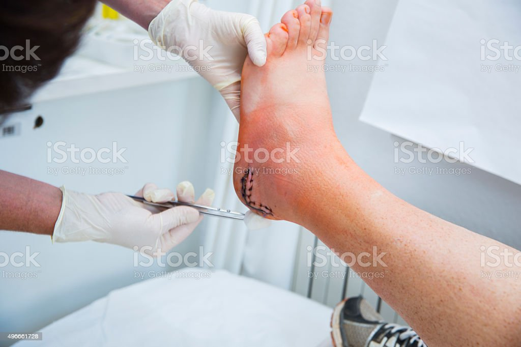 Nurse is taking care of patient with achilles tendon injury stock photo