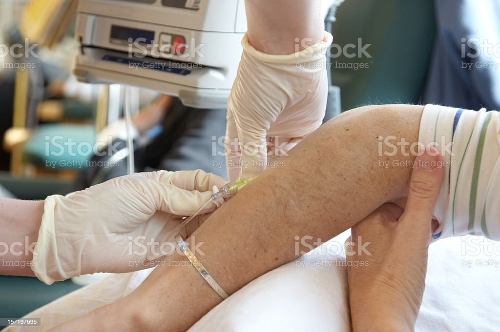 Nurse removing a cannula stock photo