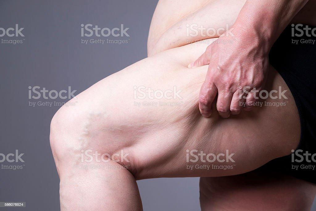 Obesity female body, fat woman legs close up stock photo