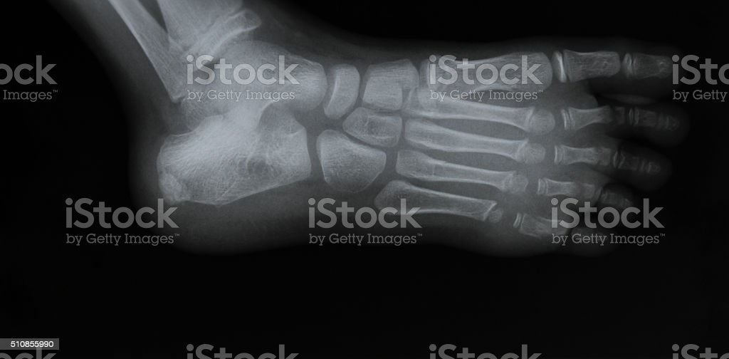 Oblique Foot x-ray hows fracture of the 5th proximal phalange stock photo