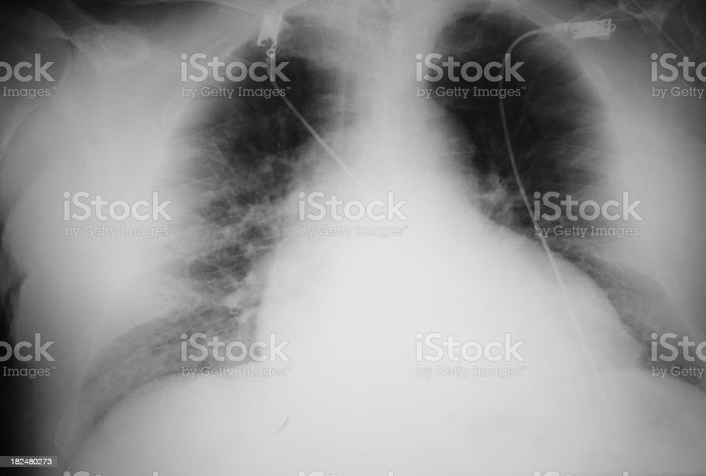 X-RAY of a death man XXXL stock photo