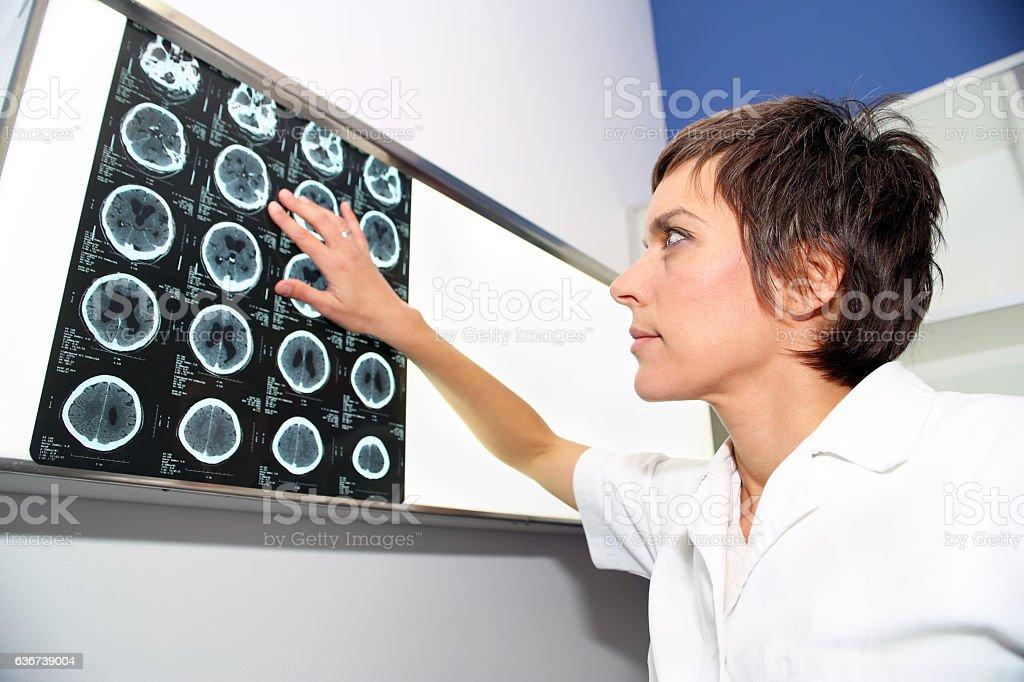 CT (computed tomography) of endocranium, CT of head stock photo