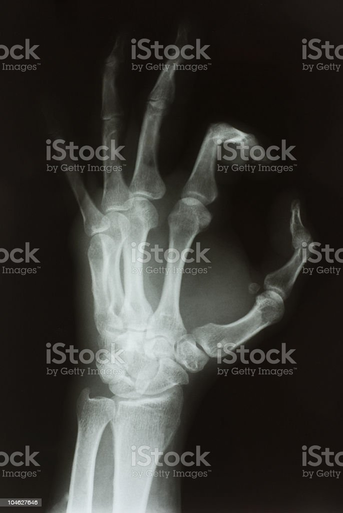 X-RAY of left human hand stock photo