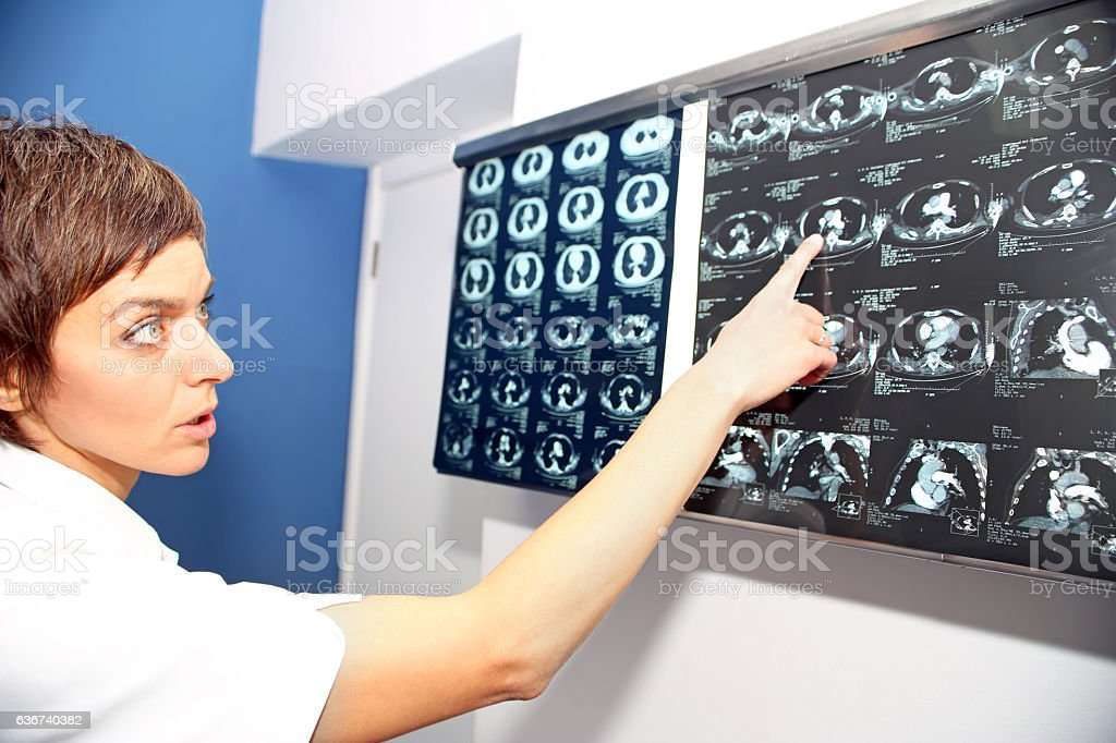 CT (computed tomography) of lung, pulmonary embolism (PE) stock photo