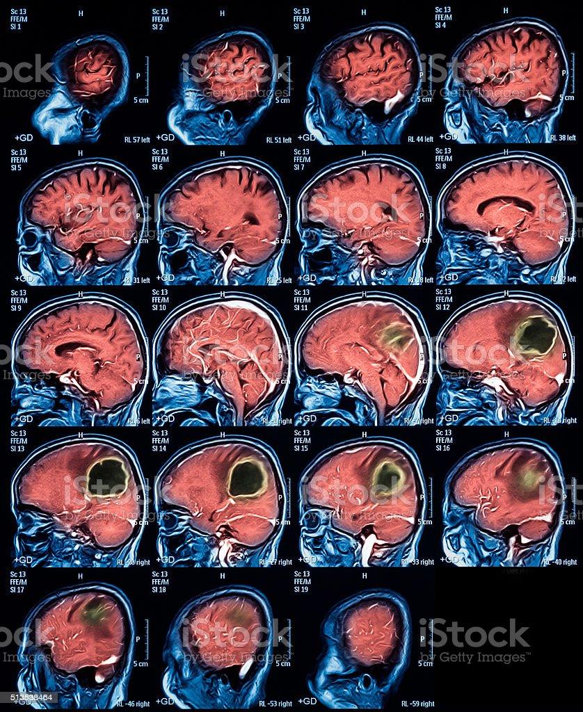 MRI of the brain, brain tumor, brain abscess stock photo