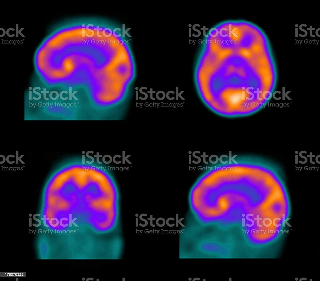 SPECT (single photon emission computed tomography) of the brain stock photo