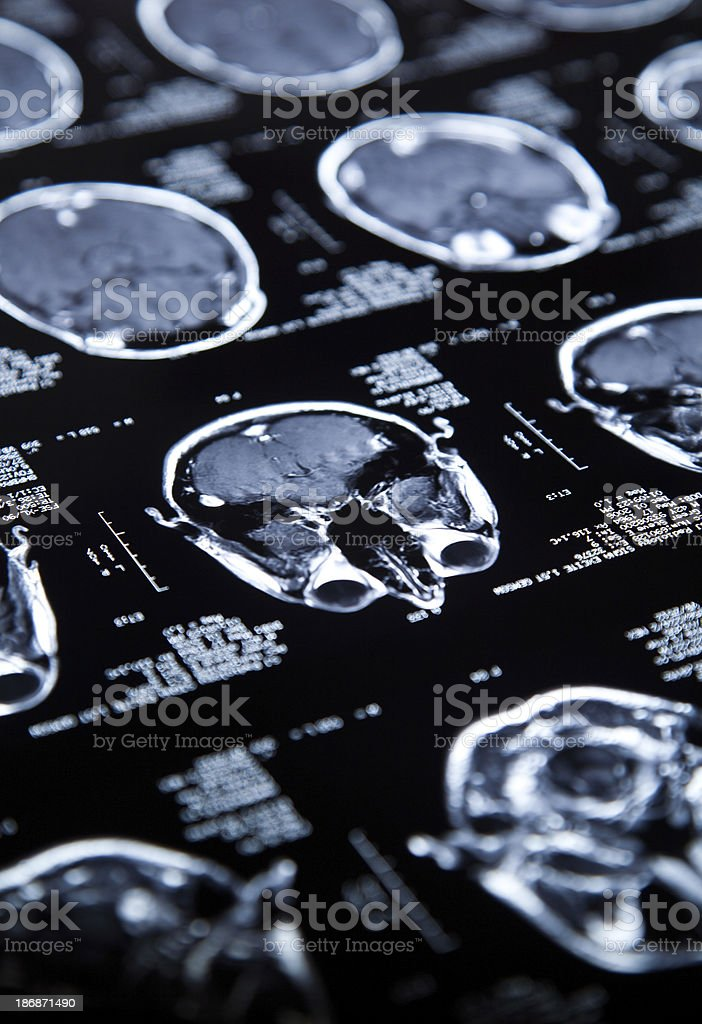MRI of the Brain royalty-free stock photo