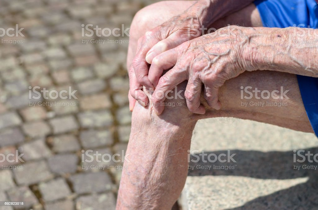 Old man with gnarled hands clutching his knee stock photo