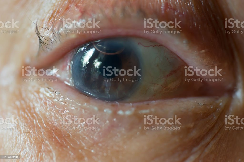 Old man's eye after cornea surgical operation and air bubble stock photo