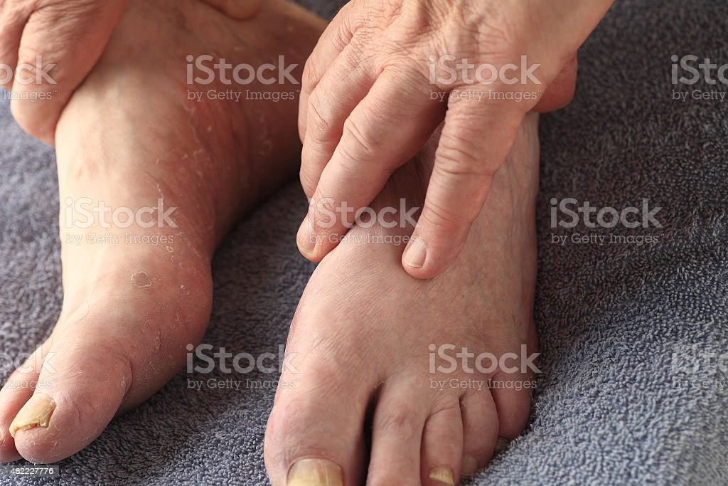 Older man with athletes foot and toenail fungus stock photo