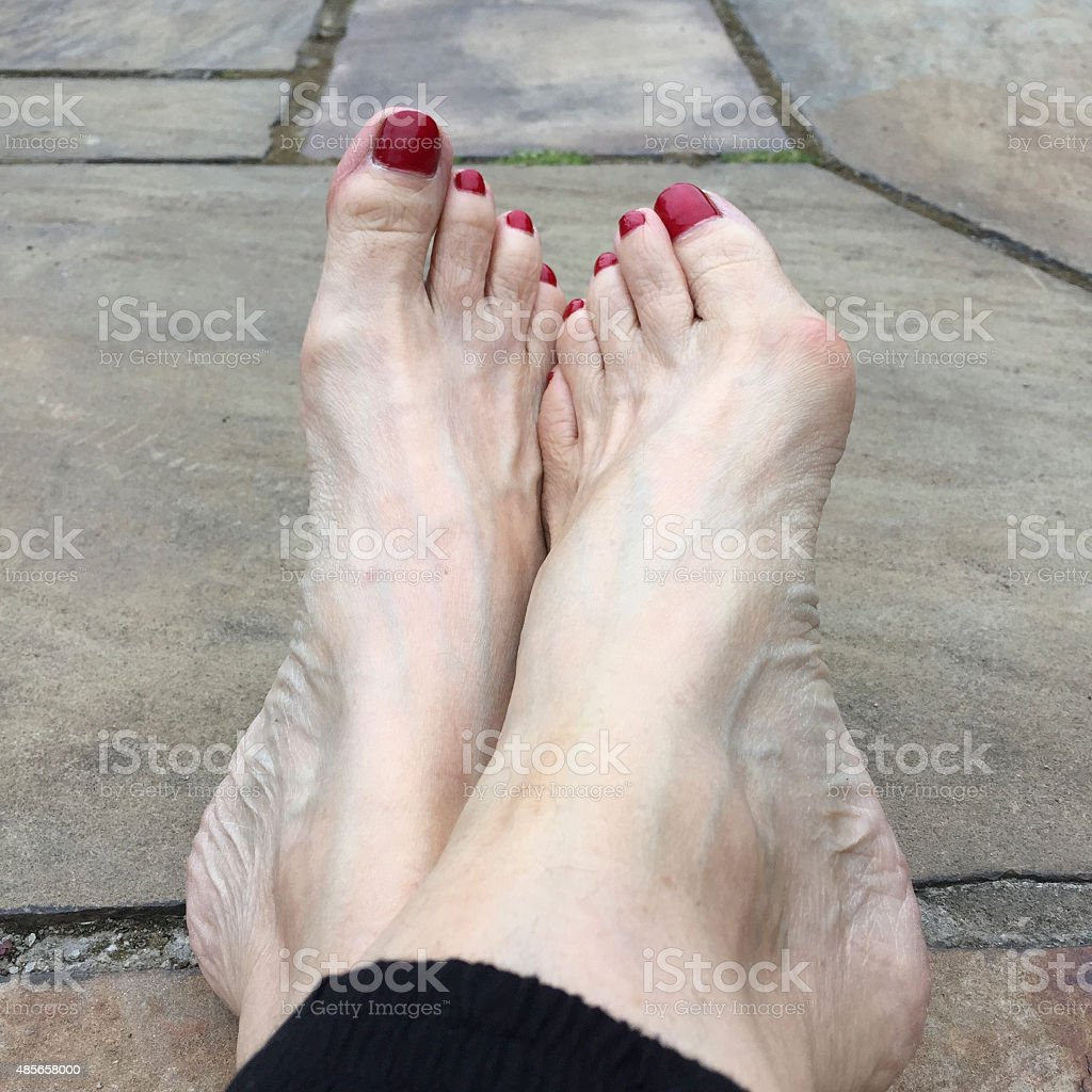 Older Woman's Feet and Bunion stock photo