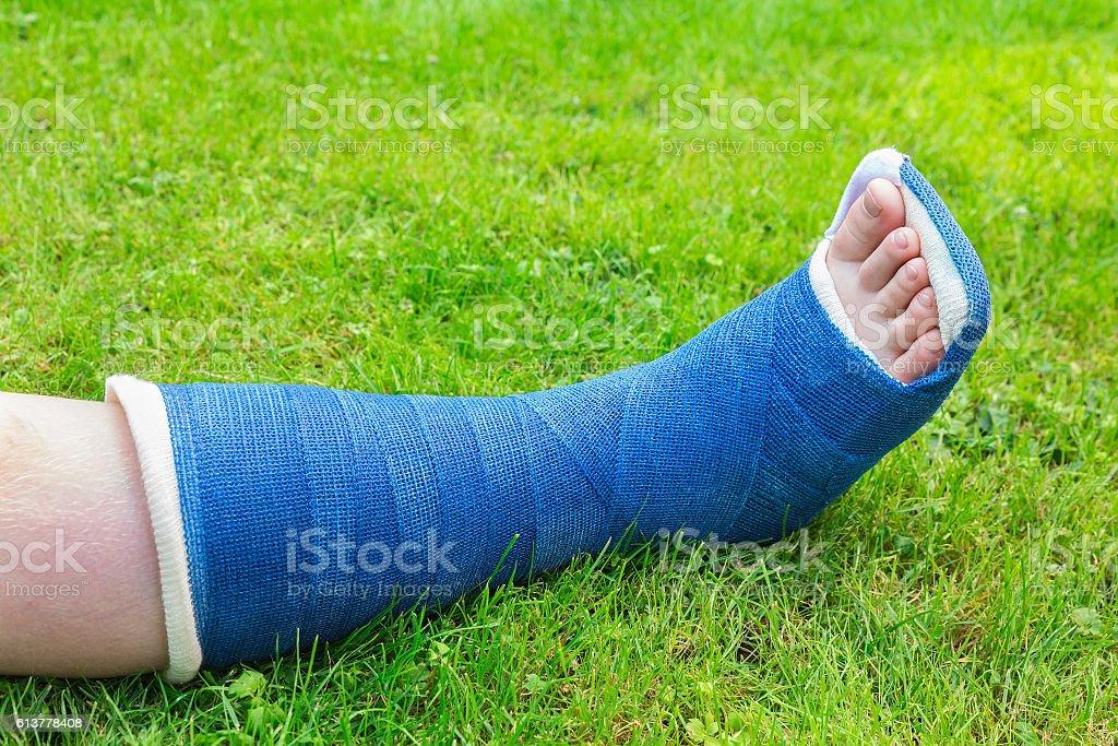 One gypsum leg of boy on grass stock photo