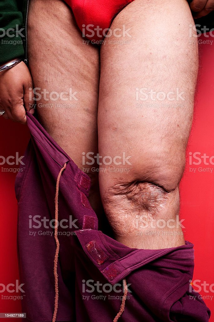 One Male showing his Broken Dislocated Knee Cap after operation stock photo