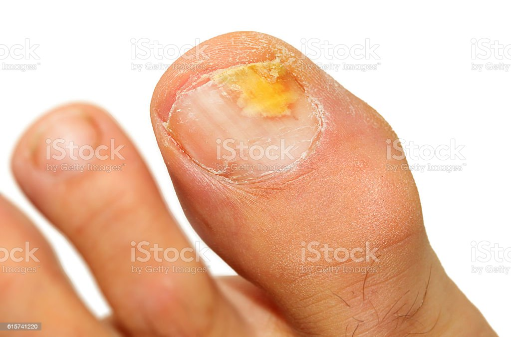 Onychomycosis fungal infection of the nail. stock photo