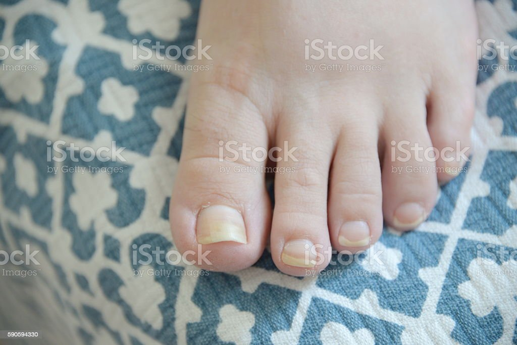 onychomycosis with fungal nail infection stock photo