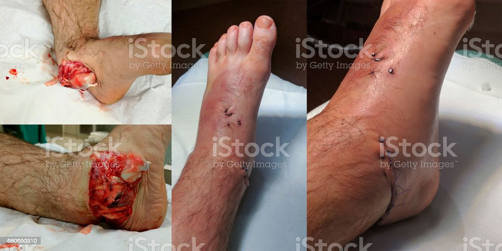 Open ankle sprain before and after surgery. stock photo